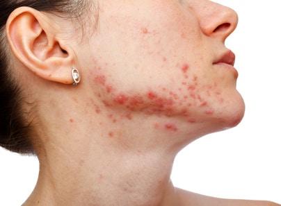 Akne, Hautausschlag im Gesicht